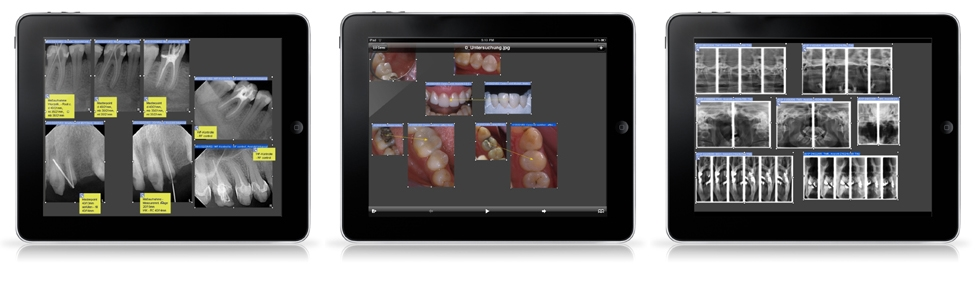 Seeing SIDEXIS images and complete examinations on the crisp 9.7 inch LED, multi touch, 1024 by 768 pixel display is breath taking. SidexisMobilePlugin support the full resolution of Apple's new iPad device.