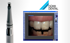 Using SIDEXIS DUERR CONNECT any SIDEXIS XG installation can talk to digital DUERR USB intraoral video cameras